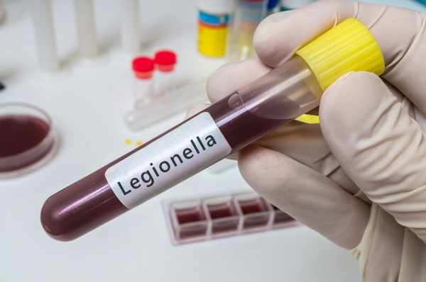 Basic Legionella Management Video Training